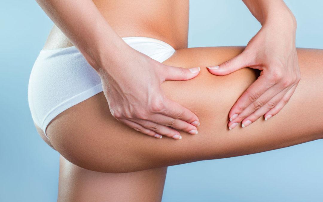 Gratis un Massaggio Anticellulite